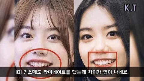 Không phải gọt cằm hay cắt mí, đây mới là đặc điểm hầu hết sao Hàn đều sửa để lột xác ngoạn mục - ảnh 5