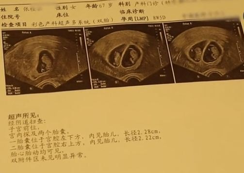 Thai phụ 67 tuổi bị bệnh viện từ chối thẳng thừng, biết được lý do bà đánh cược mạng sống để sinh con, ai cũng cảm động đến rơi lệ - ảnh 2