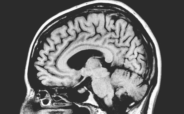 Một cậu bé bị cắt mất 1/6 não bộ, sau 3 năm vẫn sống bình thường mà không hay biết gì - Ảnh 1.