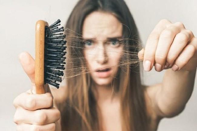 Thoát khỏi tình trạng vuốt tóc thôi cũng ra cả búi với 6 loại gầu gội ngăn rụng tóc được các chuyên gia đánh giá rất cao trên Amazon - ảnh 1