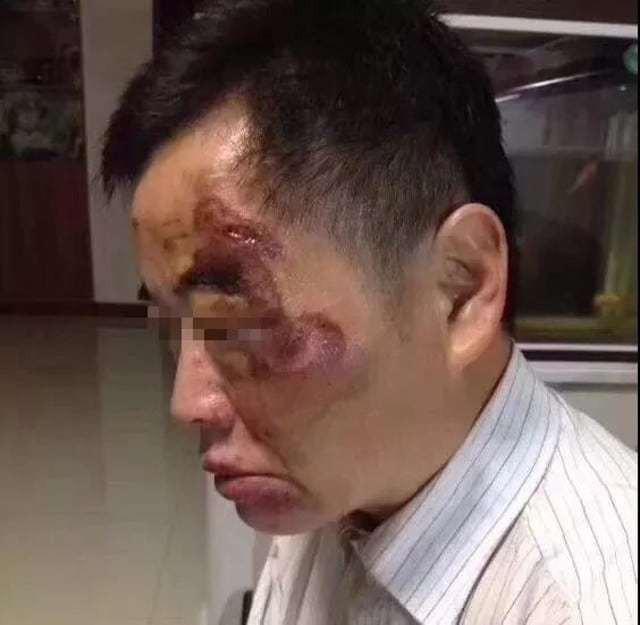 Người đi xe đạp điện - Vu Hải Minh cũng bị thương trên mặt trước khi giành được con dao và đâm Lưu Hải L.