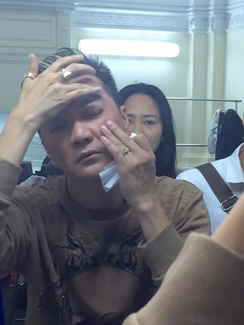 """Những sự cố không may khiến ca sĩ Vpop gặp chấn thương tới """"đổ máu"""" trên sân khấu - Ảnh 2."""