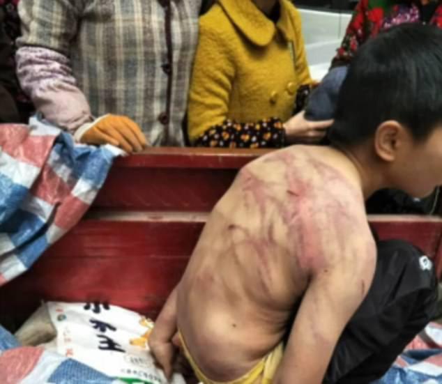 Sợ bị bố mẹ đánh, bé trai mình trần ngủ suốt đêm ngoài trời lạnh -2 độ C - ảnh 1