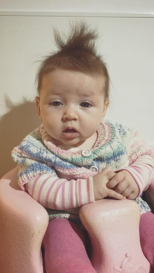 Bé gái 5 tháng tuổi đột nhiên ngừng thở vì căn bệnh rất phổ biến ở trẻ vào mùa đông - ảnh 2