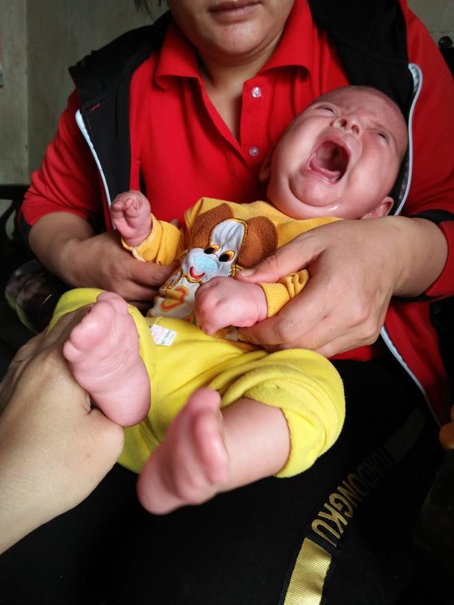 Con mới sinh đã mắc căn bệnh hiếm gặp ngặt nghèo, bố mẹ suốt ngày thay nhau bế vì con nằm xuống là tắt thở - ảnh 1