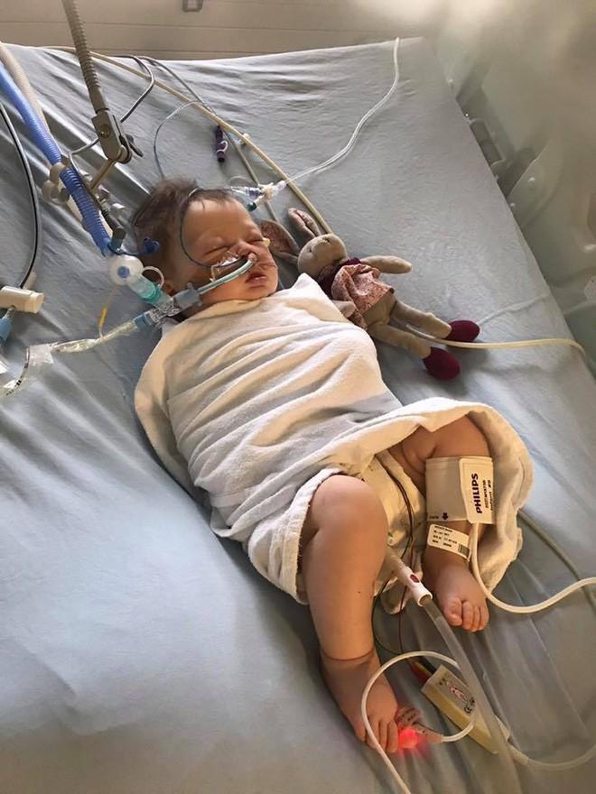 Bé gái 5 tháng tuổi đột nhiên ngừng thở vì căn bệnh rất phổ biến ở trẻ vào mùa đông - ảnh 3