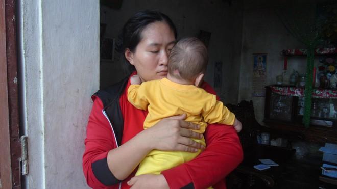 Con mới sinh đã mắc căn bệnh hiếm gặp ngặt nghèo, bố mẹ suốt ngày thay nhau bế vì con nằm xuống là tắt thở - ảnh 5