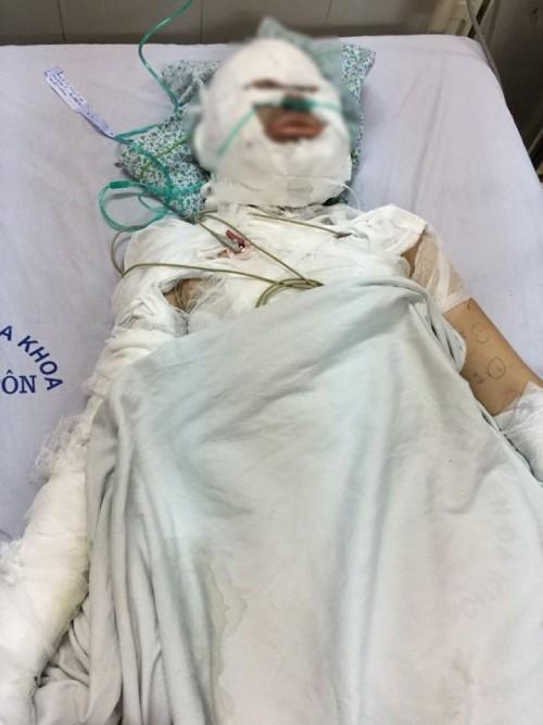 Mẹ thất thần nhìn con hôn mê trên giường bệnh sau khi bị người đàn ông nước ngoài bịt mặt tẩm xăng thiêu sống - Ảnh 1.