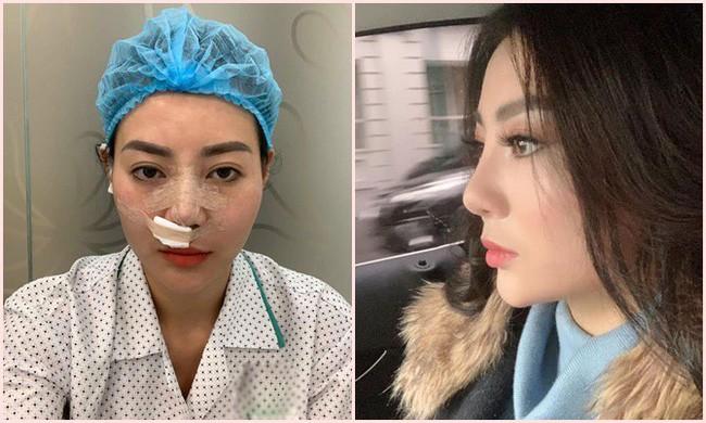 Sau Phương Oanh đến lượt Thanh Hương Quỳnh búp bê bị đồn thẩm mỹ vì gương mặt khác lạ - Ảnh 1.