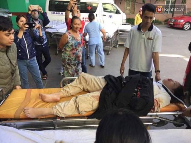 Cánh tay đứt lìa của nữ sinh trong vụ tai nạn xe khách trên đèo Hải Vân đã được nối lại thành công - Ảnh 2.