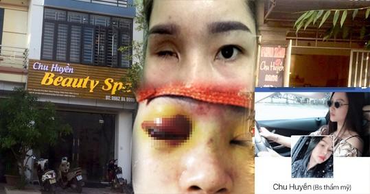 Bắc Giang: Nâng mũi tại cơ sở làm đẹp, cô gái bị mù vĩnh viễn - ảnh 1
