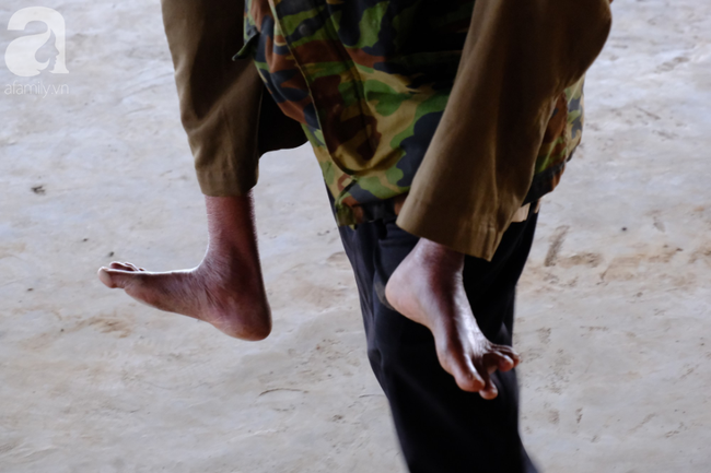 Hình ảnh xúc động tại Lào: Con trai út cõng cha già 77 tuổi bị liệt vượt hàng chục cây số đến nhờ bác sĩ Việt chữa trị - ảnh 5