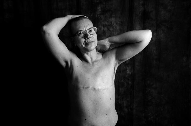 Loạt ảnh đáng kinh ngạc cho thấy sự thật nghiệt ngã khi phải chung sống với ung thư - ảnh 5