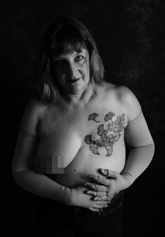 Loạt ảnh đáng kinh ngạc cho thấy sự thật nghiệt ngã khi phải chung sống với ung thư - ảnh 6