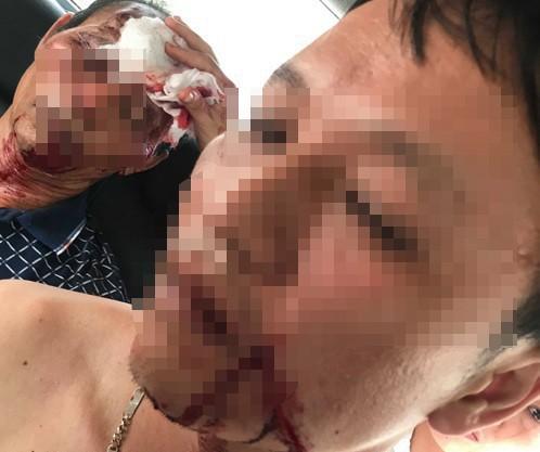 Vụ 3 người bị bắn trọng thương khi đang ăn cơm ở Thanh Hoá: Do mâu thuẫn giữa 2 nữ sinh lớp 7 - ảnh 2