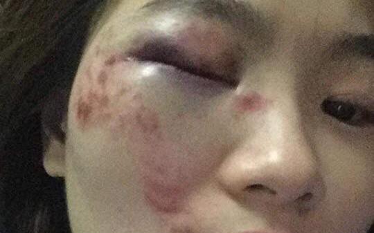 Hà Nội: Nữ nhân viên xe buýt tố bị nhóm thanh niên hành hung vào đúng ngày 20/10, phải nhập viện cấp cứu