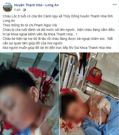 Xác minh thông tin bé trai ở Long An bị cha đẻ bạo hành, đổ nước sôi khiến bỏng nặng phải nhập viện - ảnh 1