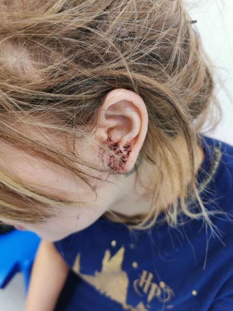Đi bar chơi với bạn, người mẫu 16 tuổi bị đánh đến chấn thương đầu chỉ vì xinh đẹp - ảnh 2