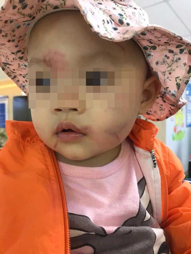 Cho con 14 tháng đi học buổi đầu tiên, chiều bố mẹ đón về hoảng hồn thấy con bị bầm tím rách mặt, tinh thần hoảng loạn - ảnh 4