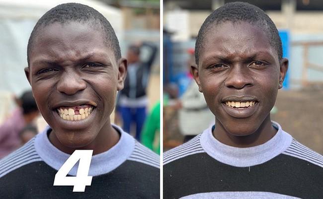 Nha sĩ Brazil được tôn làm người hùng sau khi làm răng miễn phí, đem lại nụ cười cho hàng trăm người dân nghèo khổ - ảnh 2