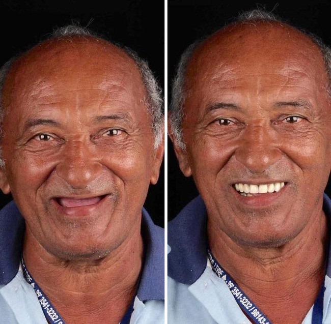 Nha sĩ Brazil được tôn làm người hùng sau khi làm răng miễn phí, đem lại nụ cười cho hàng trăm người dân nghèo khổ - ảnh 3
