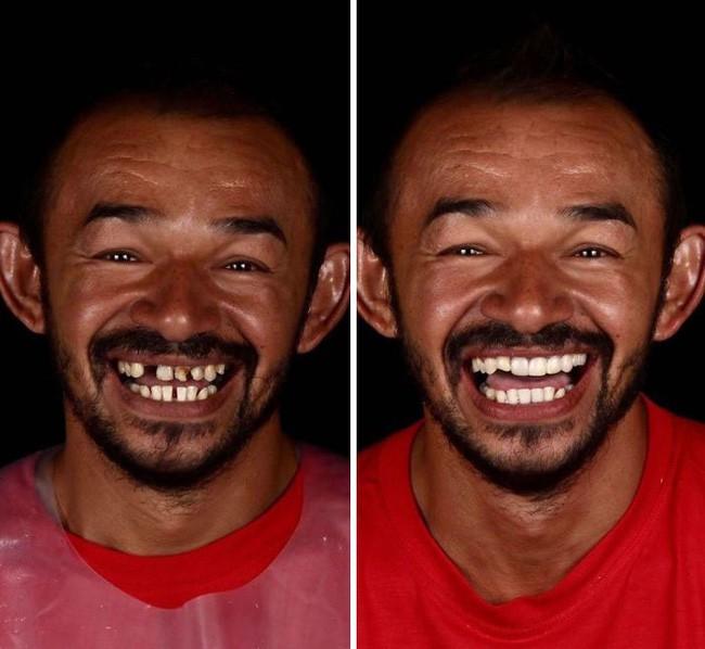 Nha sĩ Brazil được tôn làm người hùng sau khi làm răng miễn phí, đem lại nụ cười cho hàng trăm người dân nghèo khổ - ảnh 4