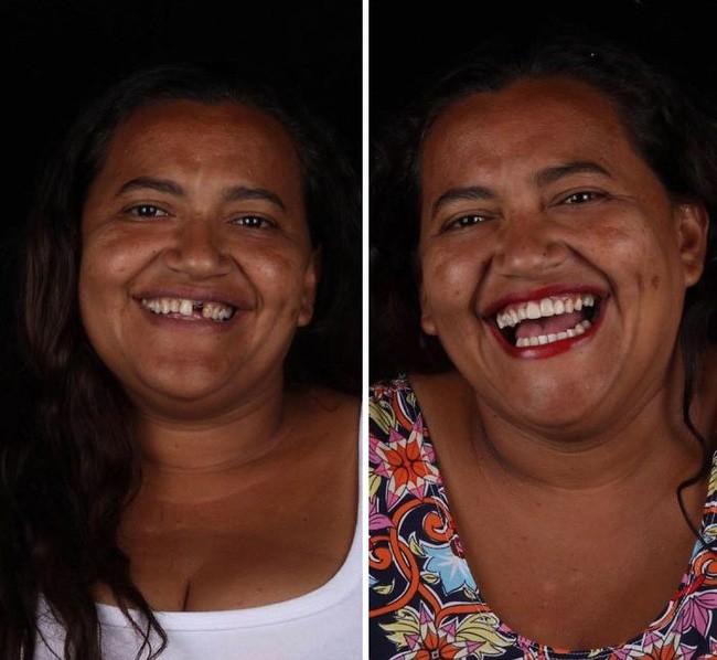 Nha sĩ Brazil được tôn làm người hùng sau khi làm răng miễn phí, đem lại nụ cười cho hàng trăm người dân nghèo khổ - ảnh 5