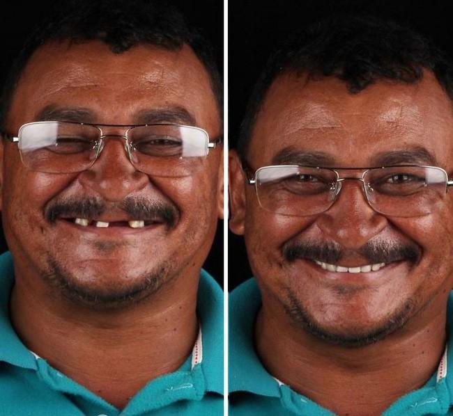 Nha sĩ Brazil được tôn làm người hùng sau khi làm răng miễn phí, đem lại nụ cười cho hàng trăm người dân nghèo khổ - ảnh 6