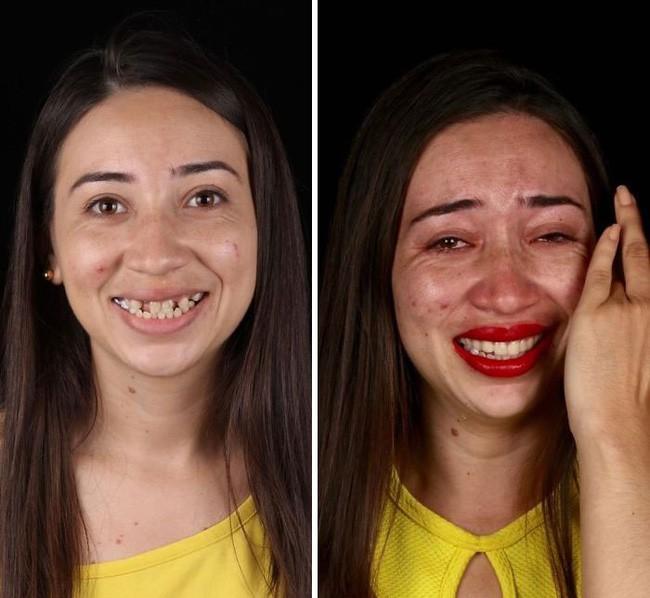 Nha sĩ Brazil được tôn làm người hùng sau khi làm răng miễn phí, đem lại nụ cười cho hàng trăm người dân nghèo khổ - ảnh 8