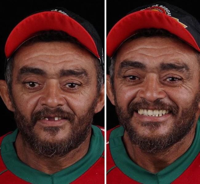 Nha sĩ Brazil được tôn làm người hùng sau khi làm răng miễn phí, đem lại nụ cười cho hàng trăm người dân nghèo khổ - ảnh 9
