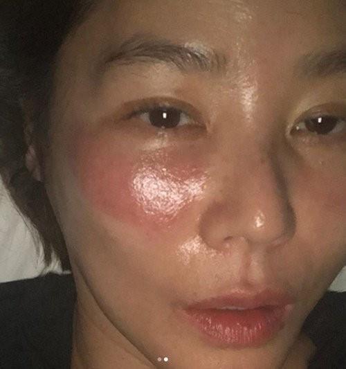 Mỹ nữ xứ Hàn bị bỏng rát mặt chỉ vì một lần đắp mặt nạ qua đêm: Lời cảnh báo thói quen làm đẹp chị em cần chấn chỉnh! - ảnh 1
