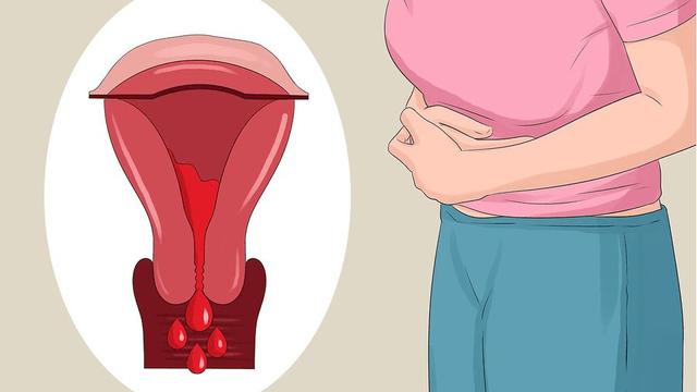 Đau bụng kinh ở mức nào bạn cần chú ý nhất để tránh ảnh hưởng tới sức khỏe sinh sản? - ảnh 2