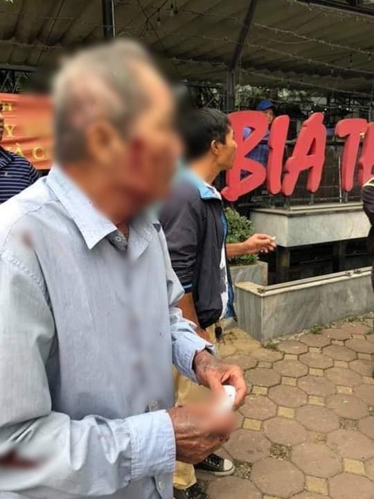 Vụ cụ ông 80 tuổi bị người lái xe ôm đánh gãy xương sườn: Hai bên xin hoà giải - Ảnh 1.
