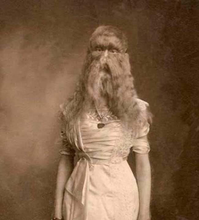 Hiện tượng lại giống khi con người có đuôi, lông tóc mọc khắp cơ thể: Là do tái hiện đặc điểm tổ tiên xa xưa hay chỉ là trò đùa của tạo hóa? - ảnh 5