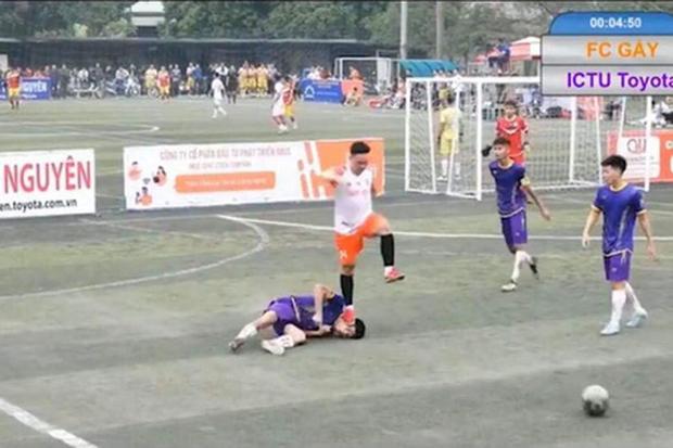 Cầu thủ bóng đá bị giẫm lên mặt đến co giật, bất tỉnh: Tôi không muốn làm lớn chuyện - Ảnh 1.