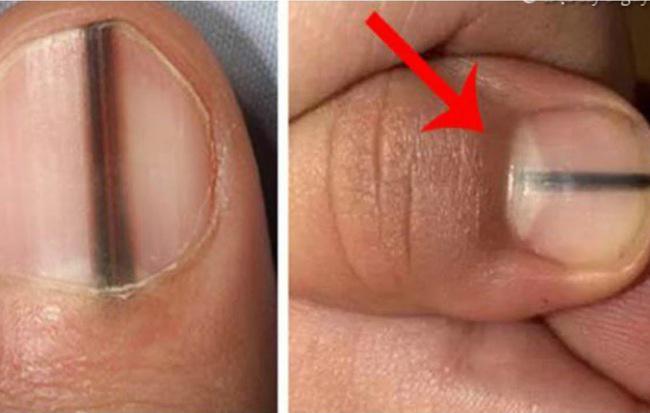 4 dấu hiệu dễ thấy trên bàn tay và bàn chân lại ngầm cảnh báo bệnh ung thư ác tính mà nhiều người không biết - ảnh 2