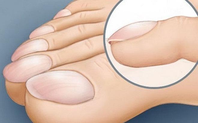 4 dấu hiệu dễ thấy trên bàn tay và bàn chân lại ngầm cảnh báo bệnh ung thư ác tính mà nhiều người không biết - ảnh 3