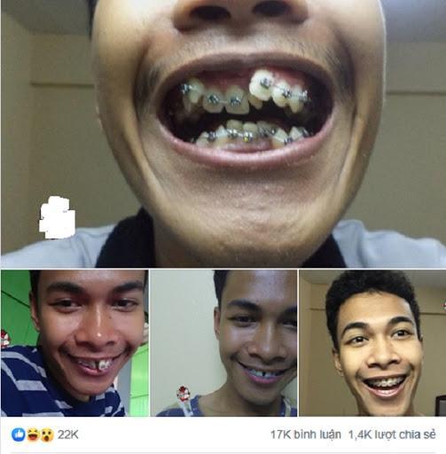 """Loạt sao chứng minh sức mạnh vi diệu của niềng răng và thời điểm vàng để bạn """"cứu vãn"""" nhan sắc nhờ chỉnh nha - ảnh 10"""