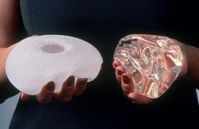 Hàng trăm trường hợp mắc ung thư sau phẫu thuật nâng ngực được phát hiện tại Mỹ - ảnh 3