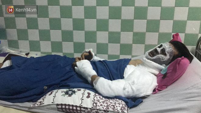 Việt kiều bị tạt axit khi đi chơi Tết với bạn gái vẫn còn mê man, mắt tổn thương nặng, thị lực chỉ còn 15 - 20% - Ảnh 1.