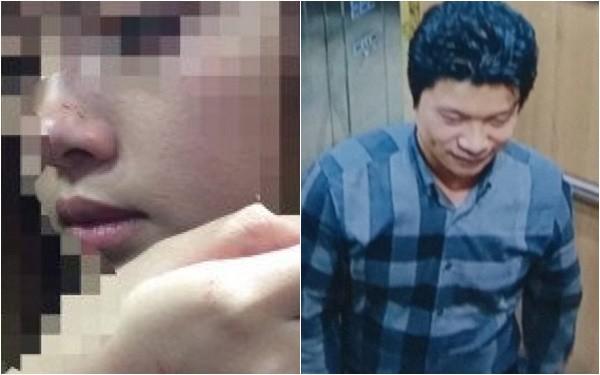 """Nữ sinh bị cưỡng hôn trong thang máy: """"Tôi thấy thất vọng, phạt 200.000 đồng quá nhẹ nhàng"""""""