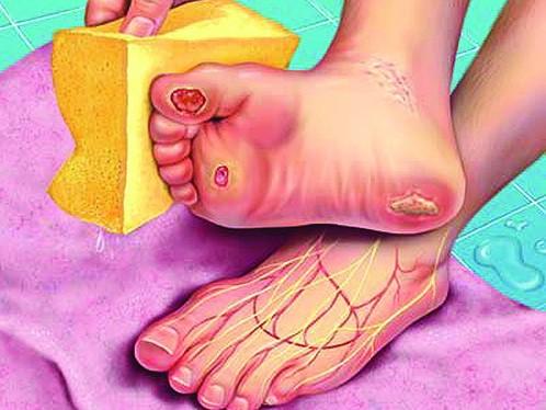 Cẩn thận với 6 dấu hiệu khác thường ở bàn chân đang ngầm cảnh báo bệnh - ảnh 3