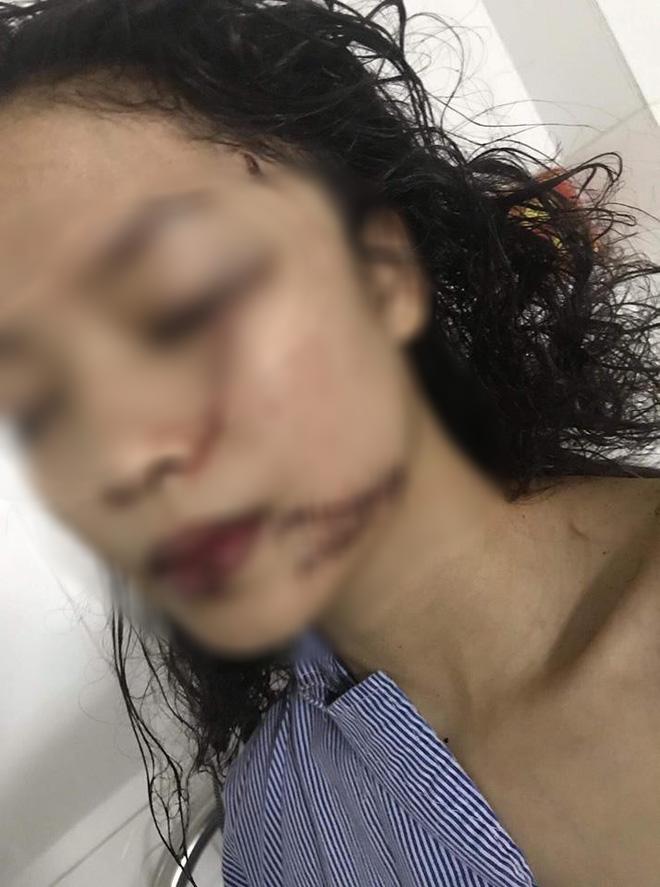 Chị ruột cô gái bị tấn công phải khâu 60 mũi: Mặt em tôi bị rạch như thế thì coi như hết đời người rồi  - Ảnh 1.