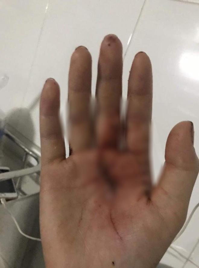 Chị ruột cô gái bị tấn công phải khâu 60 mũi: Mặt em tôi bị rạch như thế thì coi như hết đời người rồi  - Ảnh 4.