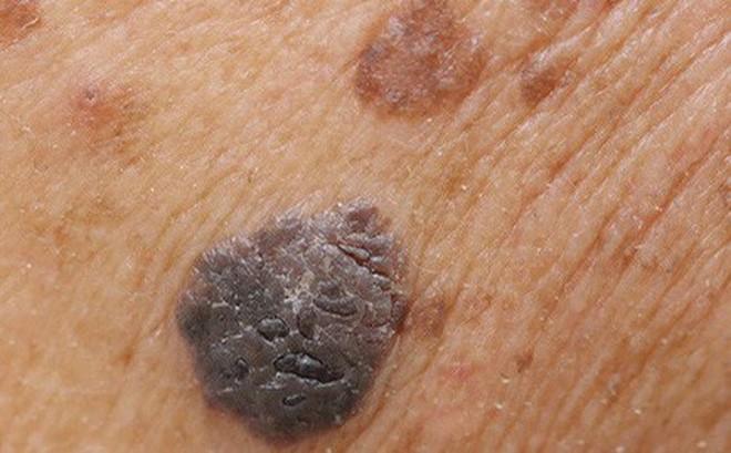 Bệnh ung thư da có thể xuất phát từ nốt mụn cóc ở nơi mà bạn chẳng ngờ tới - Ảnh 4.