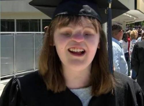 Nghị lực phi thường của nữ sinh không có mắt mũi ở Mỹ vẫn tốt nghiệp cao đẳng - ảnh 1