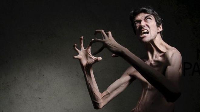Chứng bệnh lạ kỳ khiến chàng trai cao 1m98, nặng 55kg trở thành siêu sao phim kinh dị - ảnh 5