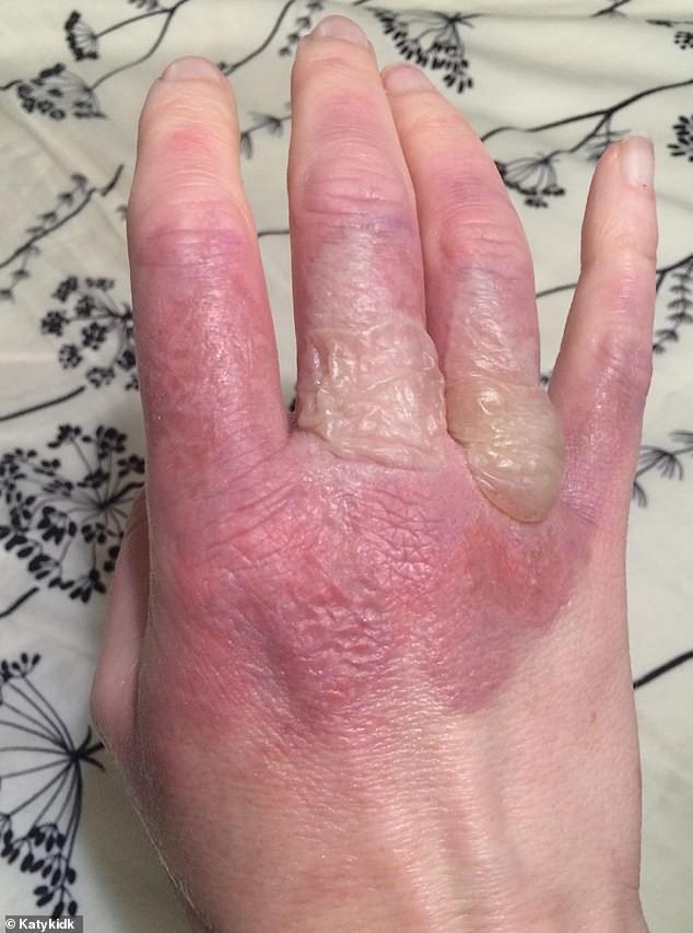Trời nắng nóng nên cẩn thận với căn bệnh viêm da mà ai cũng có thể gặp phải trong mùa hè - ảnh 1