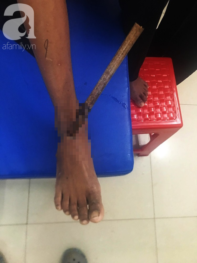 Đi chăn bò phụ cha mẹ, bé trai 11 tuổi bị cọc tre đâm xuyên chân - ảnh 1