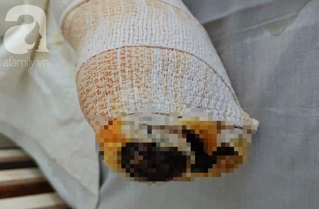 Nổ bình gas mini trong lúc nấu ăn, người đàn ông bị phỏng toàn thân, nguy kịch - ảnh 2